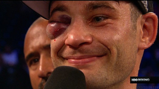chris algieri's eye